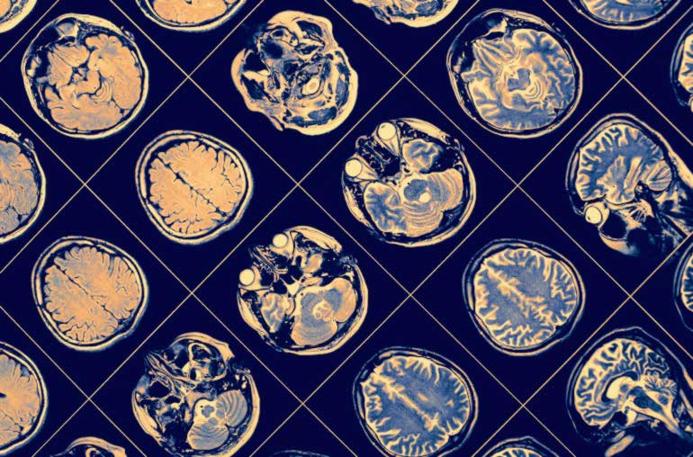 La teoría sobre el origen del Alzheimer