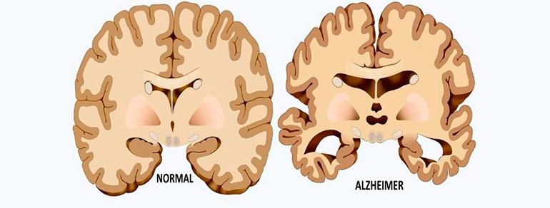 teoria-origen-alzheimer